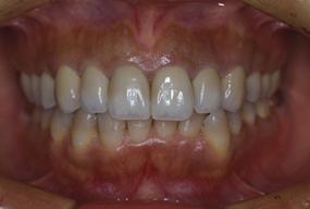 歯の移植の症例